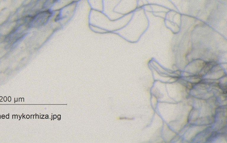 SYMBIOSE: De flokete tynne trådene er sopphyfer som har vokst sammen med en tykkere planterot. Helt til venstre i bildet sees et menneskehår. Foto: Anne de Boer og Reidun Pommeresche